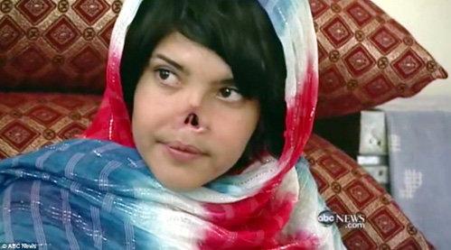 Судьба храброй афганской девушки потрясла весь мир