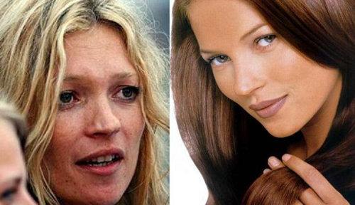 Из-за ночных загулов, страсти к выпивке, курению и неправильному питанию Кейт потеряла свою красоту