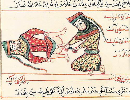 Операции по удалению лишнего органа практиковались с древнейших времён