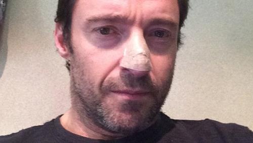Хью ДЖЕКМАН опубликовал в Instagram свое фото после операции.