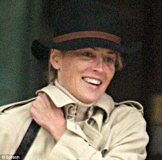 Актриса появилась на улице с кровоподтеками под каждым глазом. Фото Daily Mail