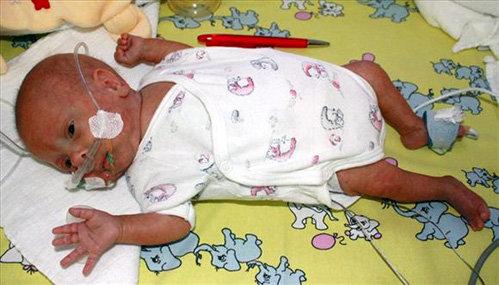 Так выглядел малыш в четыре месяца