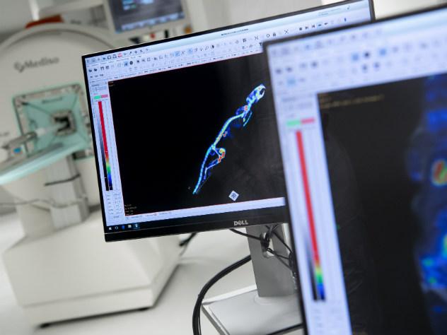 Ученые создали «молекулы-убийцы» для борьбы сраком